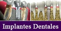 Tipos de Tratamientos de Ortodoncia