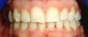 Foto inicial de paciente con sobremordida ya tratada ortodoncicamente,vemos desgastes incisales previos al tratamiento
