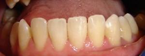 16 - Rehabilitacion estetica en los cuatro incisivos inferiores cerrando diastemas