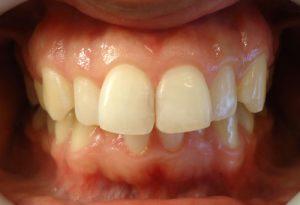 9- Finalizacion del tratamiento y restauracion estetica de ambas piezas