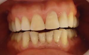 Rehabilitaciones esteticas devolviendo forma y armonia a la sonrisa