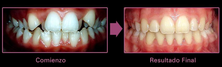 Ortodoncia cirug a de maxilares correcci n malposiciones dentarias ortodoncia ortognatica - Como alinear los dientes en casa sin brackets ...