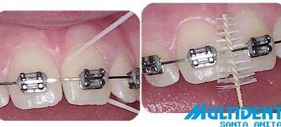 limpieza ortodoncia