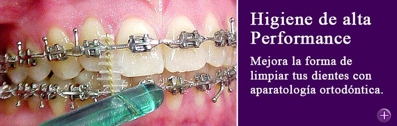 Como limpiar los dientes con ortodoncia