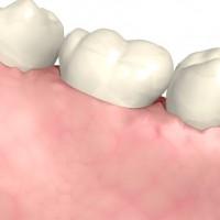 Gingivitis - enfermedades periodontales