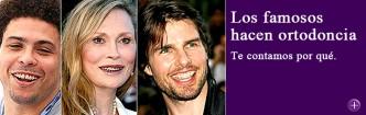 Los famosos hacen ortodoncia con especialistas. Nosotros te contamos por qué.