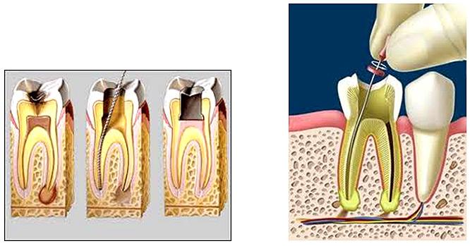 Tratamiento de conducto o endodoncia