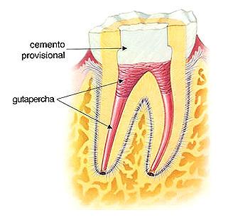 Diente a tratar con endodoncia