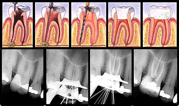 Imágenes de un tratamiento endodóntico y su posterior restauración con material estético