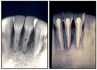 Antes y después de un tratamiento endodóntico
