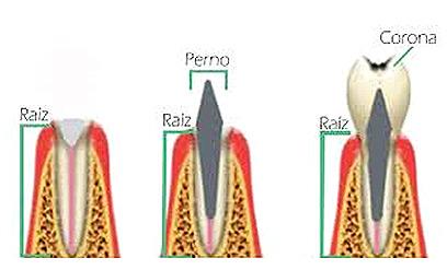 Restauración con perno y corona posterior al tratamiento endodóntico