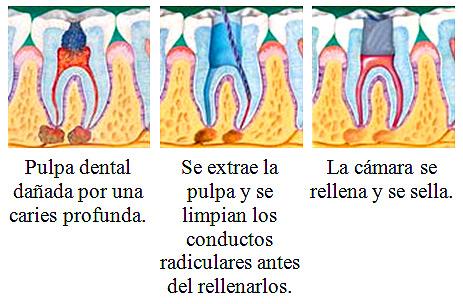 El o los dientes tratados y restaurados de este modo pueden durar toda la vida si se les cuida correctamente, ya sea que posteriormente reciba un tratamiento restaurador con pastas como composite o amalgama o bien se le realice una corona.