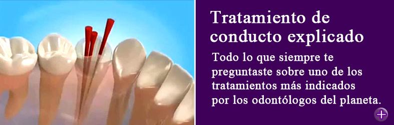 Endodoncia, tratamientos de conducto