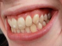 También puede ocurrir que queden restos del material adhesivo en los dientes con el cual habían sido pegados los brackets, quedando partes rugosas en los dientes y reteniendo placa bacteriana, o bien generando un aspecto manchado del diente.
