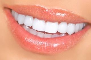 bocas saludables con ortodoncia salud