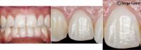 Pueden provocarse rayas o abrasiones en los dientes debido al uso de piedras o fresas muy asperas que no son las indicadas para trabajar en el diente luego de retirar los brackets.