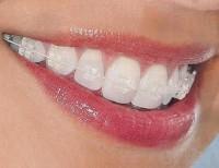 ¿Puede ocurrir que me retiren mal los aparatos de ortodoncia?