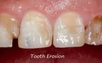 Los dientes quedan manchados en la zona donde estaban colocados los brackets, y esa mancha es irreversible porque es producida por el desgate del esmalte que es parte del diente, exponiendo el tejido que se encuentra por debajo del esmalte llamado dentina que es de color amarillento –anaranjado.