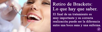 Retiro de brackets y finalización de tratamiento de ortodoncia