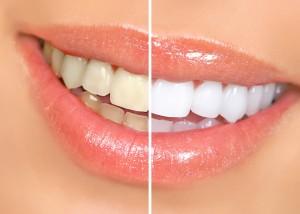 Es un tratamiento que recupera el color y el brillo original del diente y puede bajar hasta 3-4 tonos el color del mismo.