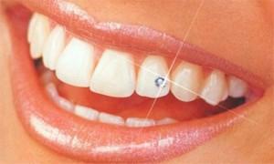 """El """"skyce"""" o """"piercing"""" dental es una nueva tendencia que tiene por objetivo embellecer la sonrisa. Es un pequeño diamante que se coloca en uno o varios dientes para alegrar la sonrisa y darle brillo."""