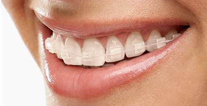 Resultado de imagen de ortodoncia estetica