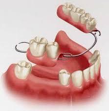 Prótesis removible completas y parciales