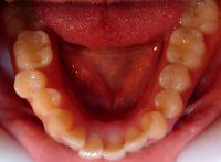 5- Vista oclusal maxilar inferior apiñamiento