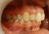2- Vista inicial lateral derecho. clase II molar