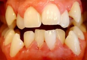 1- Foto inicial de frente en oclusion mordida abierta anterior con importante apiñamiento sup e inf, deviacion linea media dentaria