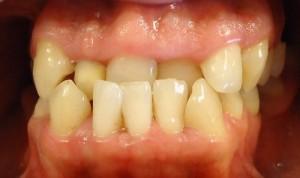 1- Foto inicial donde observamos mordida invertida anterior con importante apiñamiento y desviacion linea media dentaria