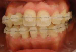 10-Vista frontal alineacion inf