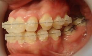 11- Alineacion y nivelacion vista lateral izq