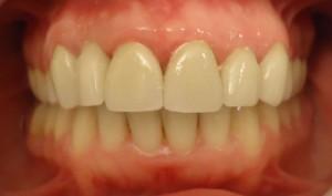 11 - Foto final con Rehabilitaciones proteticas realizadas de 3 a 3 max sup, coronas individuales
