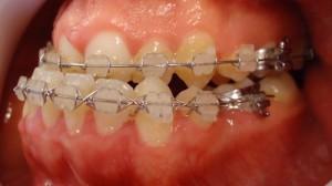11- Vista lateral izq, se preparan los max para la cirugia ortognatica