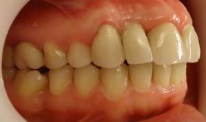 12 - Foto final vista lateral der, se coloco un implante pieza 12 ausente