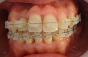 13- Vista frontal del tratamiento