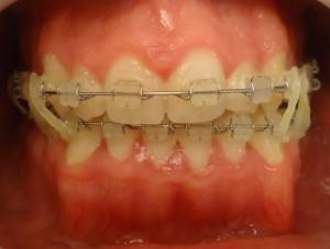 13- Vista frontal en oclusion luego de la cirugia reubicando max inferior