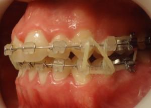 14 -Vista lateral izq utilizacion de gomas intermaxilares dobles
