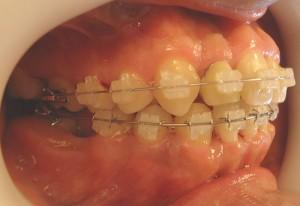 15- Vista lateral de la evolucion del tratamiento,