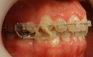 15- Vista lateral derecho gomas intermaxilares post cirugia