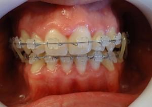 16 -Luego de la cirugia ortognatica, utilizacion de gomas para asentar la oclusion