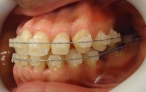 16- Vista lateral del tratamiento