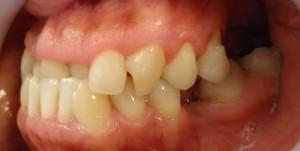 2- Vista lateral izq. Vemos ausencia de piezas dentarias tanto sup como inf.y relacion canina en 3