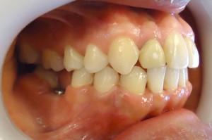 24- Vista final lateral dercho con colocacion de implante pieza 4.6