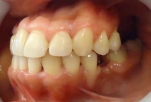 24-Vista final lateral izq con colocacion de implante pieza 3.6