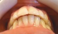 24 - Control de la oclusion y contactos prematuros