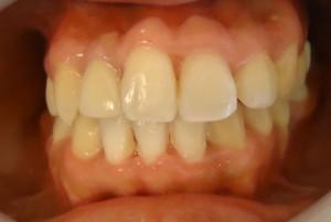 28-Foto final del tratamiento en oclusion con corona definitiva en 1.2