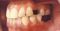 3 - Foto inicial vista lateral izquierdo, ausencia de piezas con plano oclusal y dimension vertical conservados