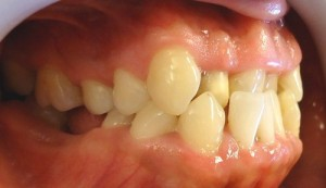 3- Vista lateral derecho, con ausencia de molares inferiores
